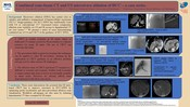 Combined cone-beam CT and US microwave ablation of HCC – a case series.